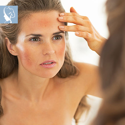 The Face and Body Place - Diffused Redness