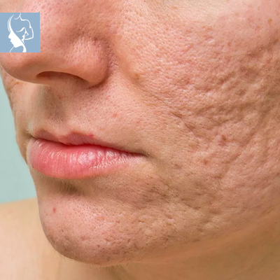 The Face and Body Place scarring treatments